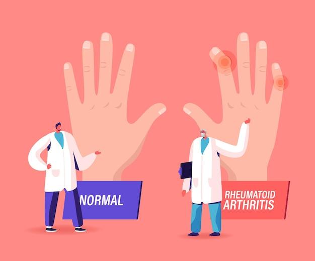 Ilustração de doença com artrite reumatóide