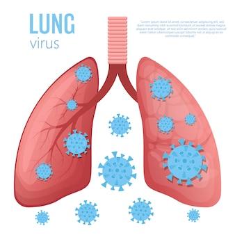 Ilustração de doença pulmonar em fundo branco