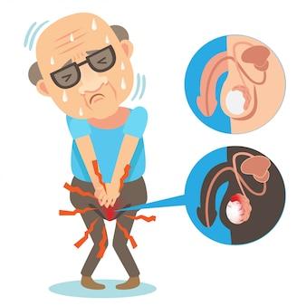 Ilustração de dor testicular