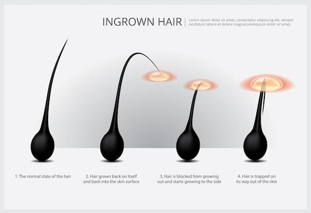 Ilustração de exemplo de remoção de pêlos