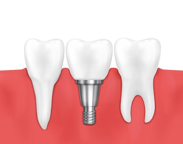 Ilustração de implante dentário e dente normal