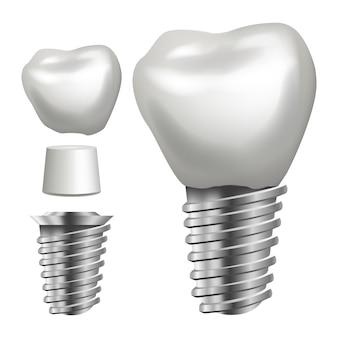 Ilustração de implante dentário