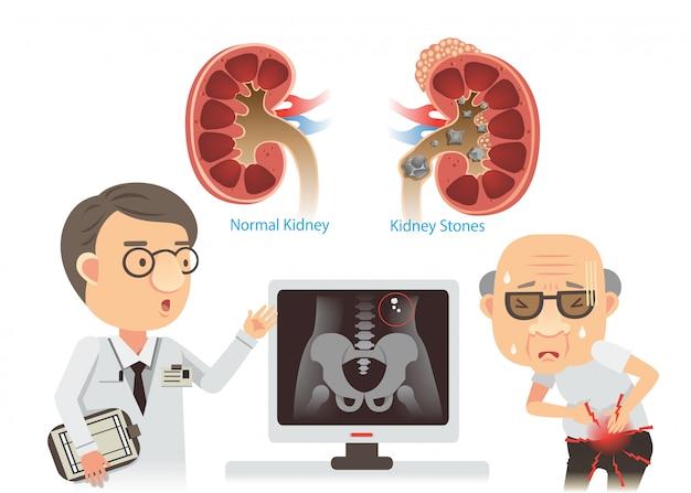 Ilustração de pedras nos rins