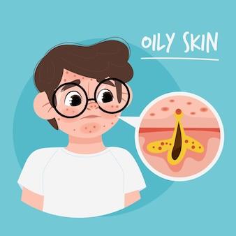 Ilustração de pele oleosa com homem