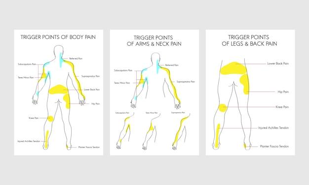 Ilustração de pontos de dor no corpo