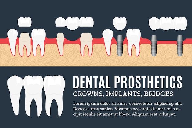 Ilustração de prótese dentária com ícones de implante dentário, coroa e ponte