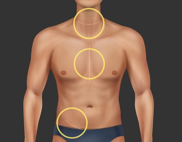 Ilustração de torso de homem com cicatrizes curadas no pescoço