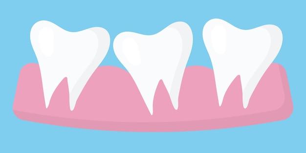 Ilustração de três dentes três dentes irregulares o conceito de dentes irregulares