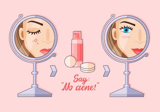 Ilustração de um personagem de desenho animado plano moderno. uma garota que não tem problemas de pele. antes e depois. loção para acne. sem acne.