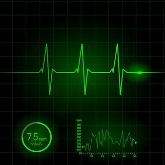 Ilustração de vetor de eletrocardiograma de coração
