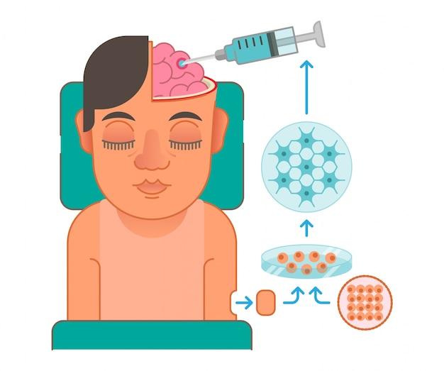 Ilustração do conceito de transplante de células cerebrais