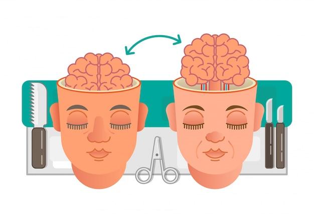 Ilustração do conceito de transplante de cérebro