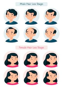 Ilustração dos estágios da queda de cabelo desenhada à mão plana
