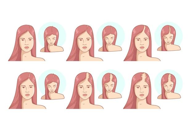 Ilustração dos estágios de queda de cabelo desenhada à mão