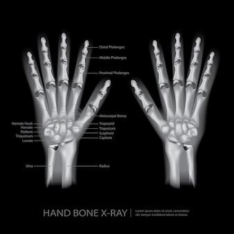 Ilustração em vetor de raio-x de osso de mão