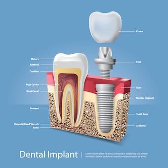Ilustração em vetor dentes humanos e implante dentário