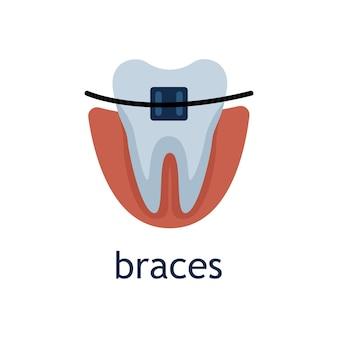 Ilustração em vetor plana de um dente com aparelho