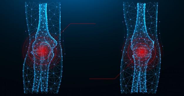 Ilustração em vetor poligonal azul para dor nas articulações do cotovelo