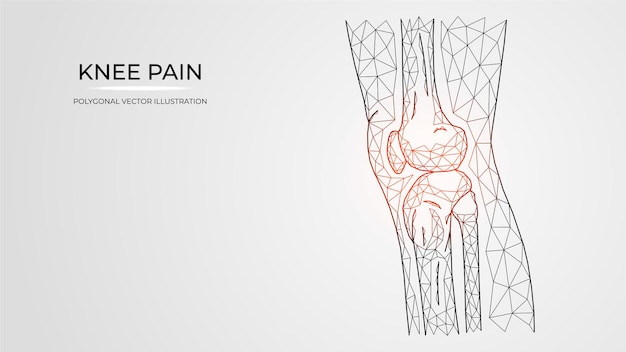 Ilustração em vetor poligonal de dor, inflamação ou lesão na vista lateral do joelho. anatomia dos ossos da perna humana.