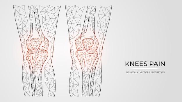 Ilustração em vetor poligonal de dor, inflamação ou lesão nos joelhos. anatomia dos ossos das pernas humanas.