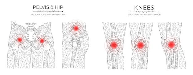 Ilustração em vetor poligonal de dor pélvica e no joelho. modelos de doenças ortopédicas médicas