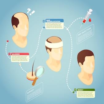 Ilustração em vetor transplante de cabelo