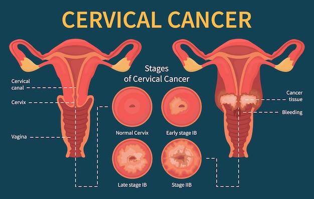 Ilustração infográfico de câncer cervical