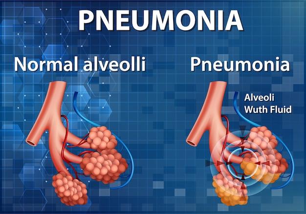 Ilustração informativa da comparação de alvéolos saudáveis e pneumonia