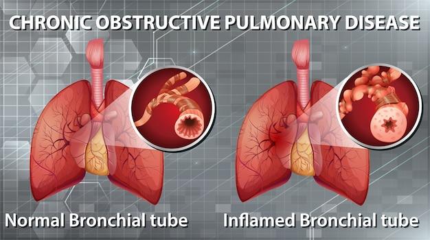 Ilustração informativa da doença pulmonar obstrutiva crônica