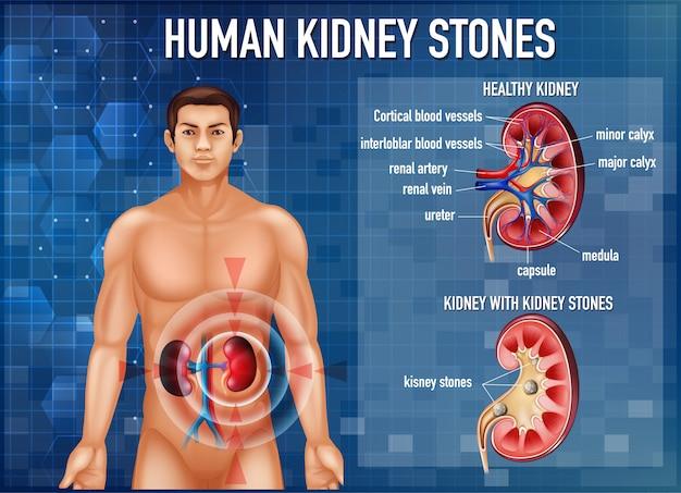Ilustração informativa de cálculos renais