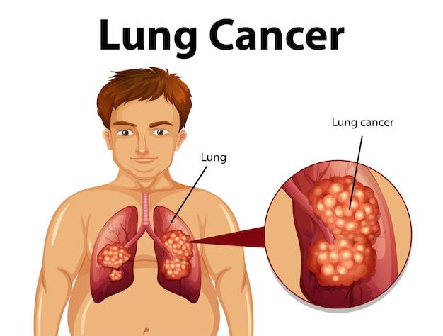 Ilustração informativa de câncer de pulmão