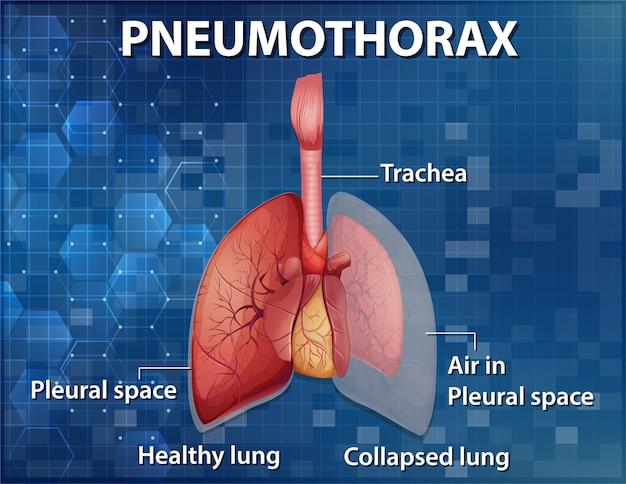 Ilustração informativa de pneumotórax