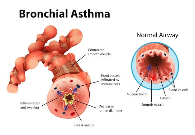 Ilustração informativa de tubo brônquico inflamado com asma