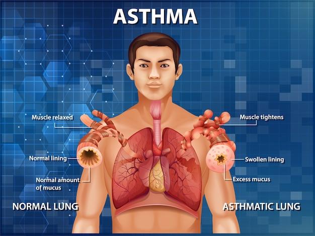 Ilustração informativa do diagrama de asma da anatomia humana