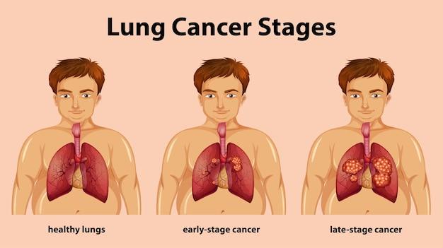 Ilustração informativa dos estágios do câncer de pulmão