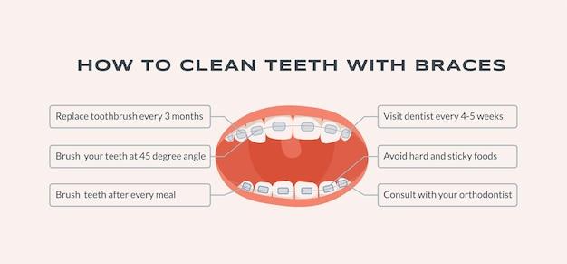 Ilustração plana de como limpar os dentes com aparelho