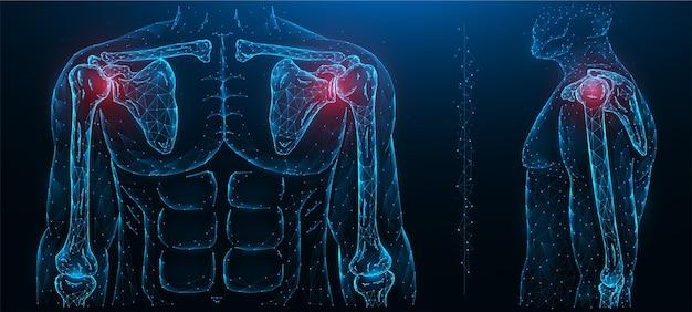 Ilustração poligonal de uma articulação do ombro dolorida. doença da articulação do ombro. doenças do sistema músculo-esquelético humano