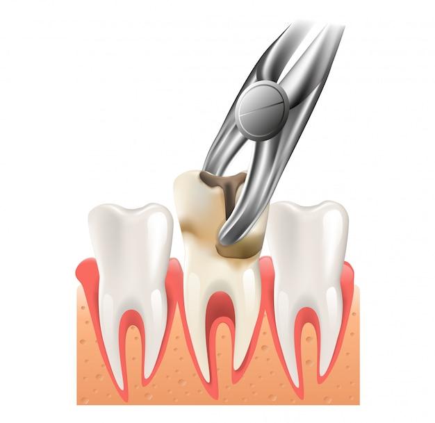 Ilustração realista cirurgia dentária em vetor 3d