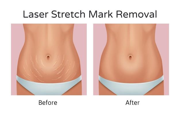 Ilustração realista de antes e depois da remoção das estrias de laser