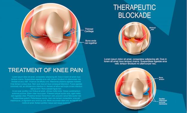 Ilustração realista de tratamento da dor no joelho