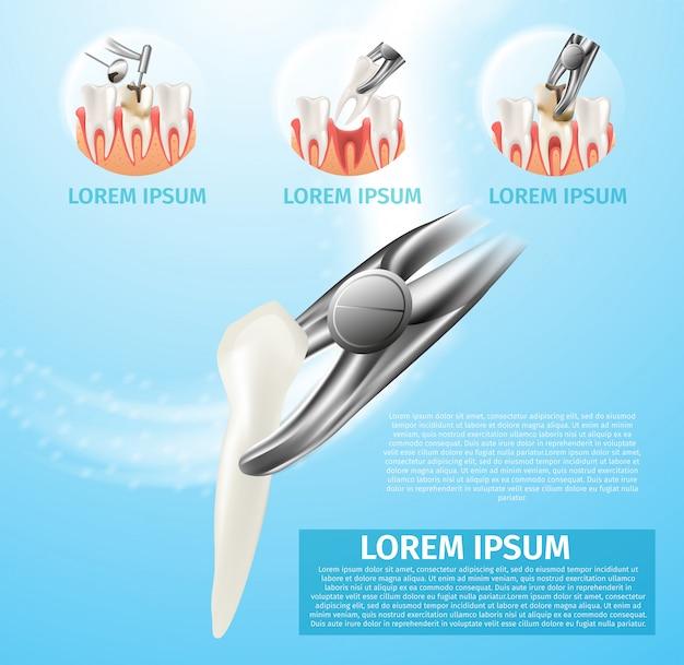 Ilustração realista vetor de extração de dente 3d