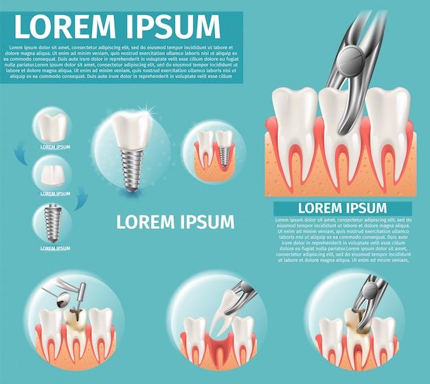 Ilustração realística infográfico dental surgeron