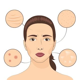Ilustração vetorial de problema de pele de mulher