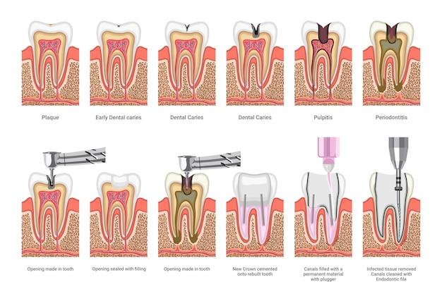 Ilustrações médicas de tratamento odontológico