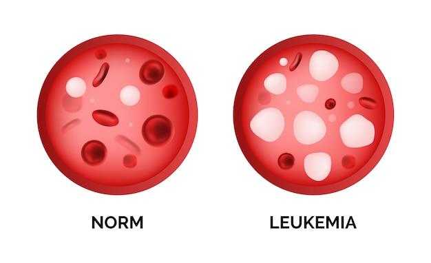 Imagem infográfico de ilustração de leucemia