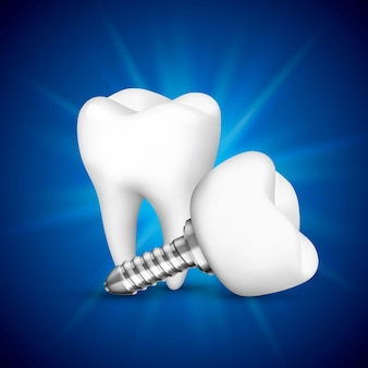 Implante de dente em um fundo azul. ilustração vetorial