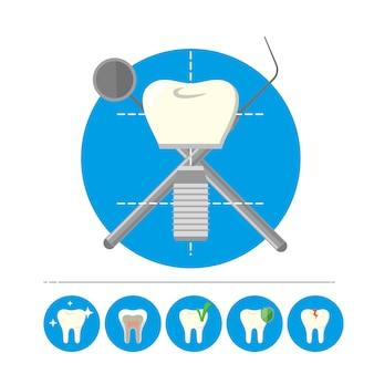 Implante de dente isolado, vetor