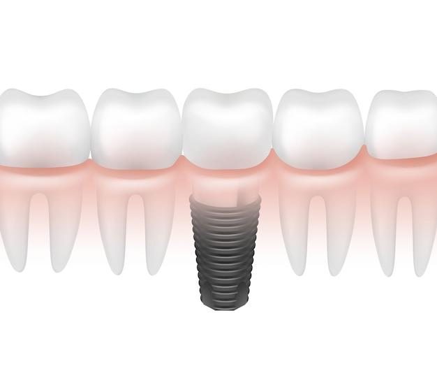 Implante dentário de metal de vetor entre outros dentes em vista lateral da gengiva, isolado no fundo branco