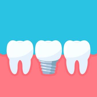 Implante dentário e dentes na gengiva dente com símbolo de implante da clínica odontológica