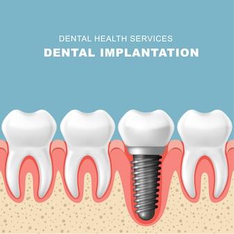 Implante dentário - fileira de dentes na gengiva com implante